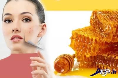 انواع ماسک عسل برای رفع جای جوش صورت