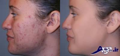 از بین بردن جای جوش صورت با درمان های خانگی