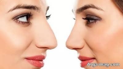 کوچک شدن بینی با کمک ماسک های طبیعی
