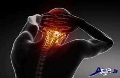 درمان و علائم آرتروز گزدن