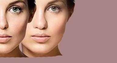 کوچک کردن بینی با انجام روش های طبیعی
