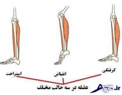 علل و درمان خانگی گرفتگی عضلانی