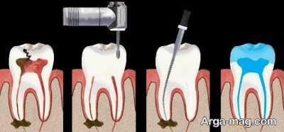 عصب کُشی دندان