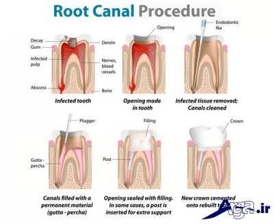 روش های عصب کشی دندان ها