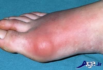 درمان نقرس در پا