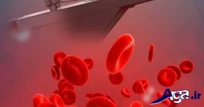 قرص آهن برای کم خونی