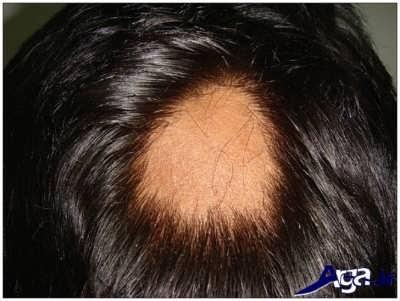 ریزش موی در سر به صورت سکه ای