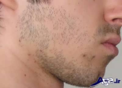 ریزش موی به صورت سکه ای