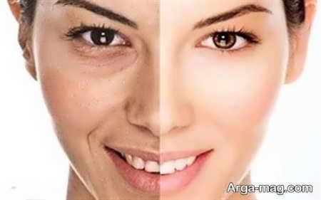 فواید فندق بر سلامت پوست