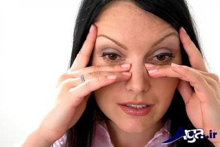 حساسیت فصلی در چشم