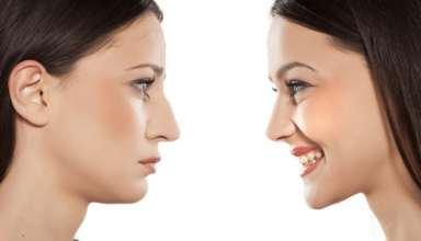 چاق شدن صورت با 7 روش تاثیرگذار
