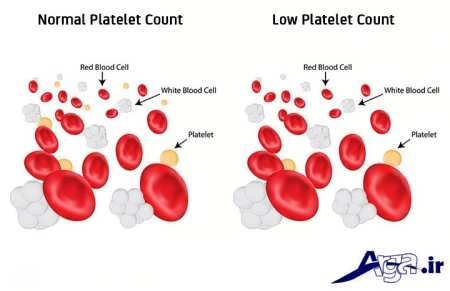 تفاوت پلاکت خون نرمال و کمبود