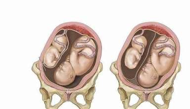 علائم و نشانه بارداری های دوقلو