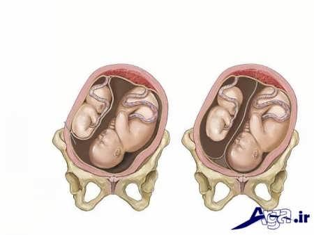 علائم بارداری دوقلو