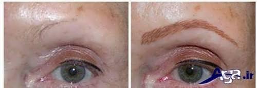 ریزش ابرو ها و مژه ها بر اثر تاتو کردن خط چشم