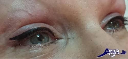 عوارض ناشی از تاتو کردن خط چشم