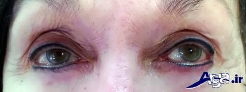 تاتو کردن پلک چشم و عوارض ناشی از تاتو