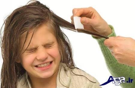 درمان شپش سر در کودکان