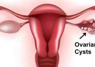 علایم انواع کیست تخمدان