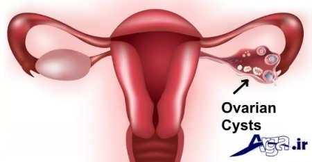 علایم و درمان کیست تخمدان