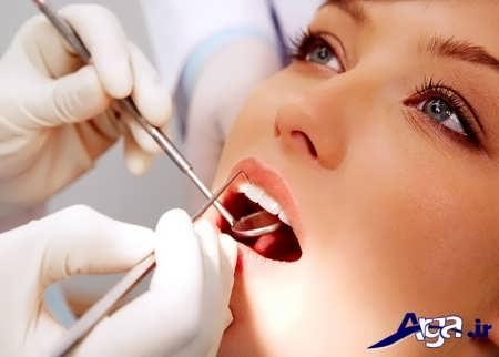 جرم گیری قطعی دندان