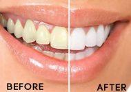روش های جرم گیری خانگی دندان