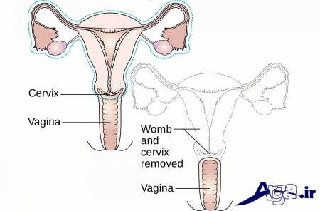 تصویر یائسگی در زنان