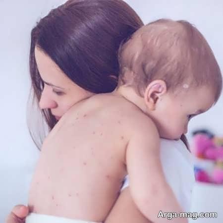 اگزما در نوزاد
