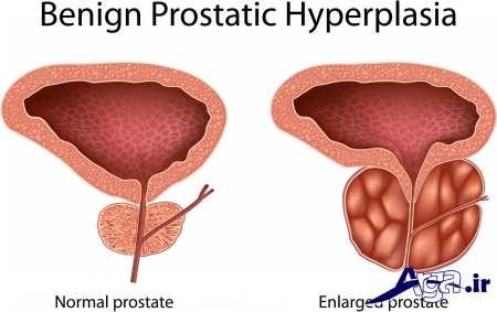 درمان بیماری پروستات