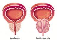 درمان قطعی پروستات