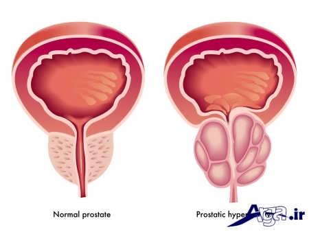 درمان بزرگی پروستات در مردان
