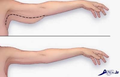 ورزش برای لاغری بازو