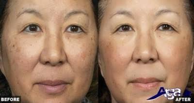 درمان لکه های قهوه ای صورت با روش های طبیعی
