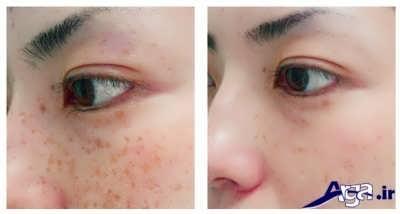 درمان لک صورت با روش های خانگی