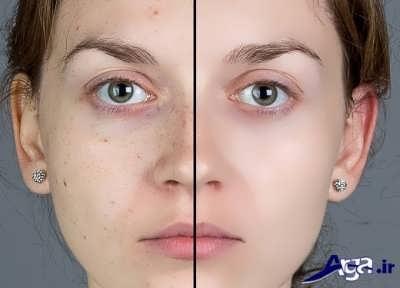 درمان و رفع لک صورت