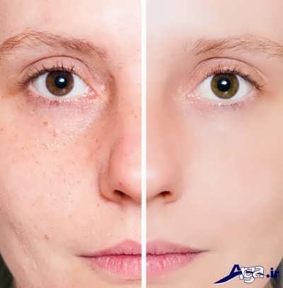درمان لکه های صورت