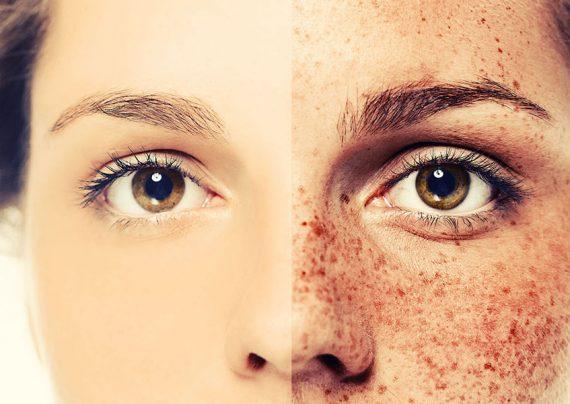 درمان لک صورت با روش های خانگی و گیاهی