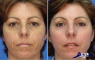 روش های طبیعی و خانگی برای درمان لک صورت