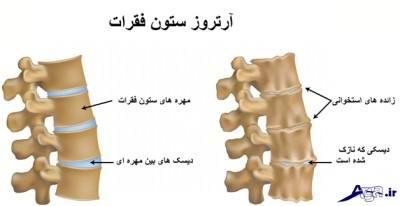 تاثیر گلوکزامین بر درمان درد مفاصل