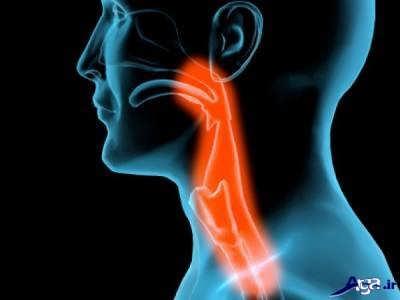 علایم و نشانه های سرطان حنجره