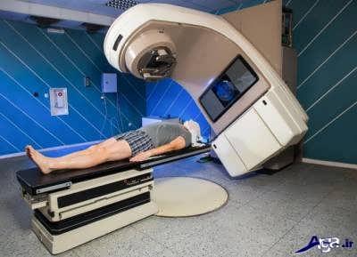 پرتو درمانی برای سرطان حنجره