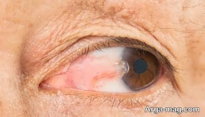 بهبود ناخنک چشم با روش های طبیعی