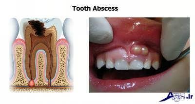 درمان آبسه دندان و لثه