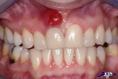 روش های درمان آبسه لثه و دندان