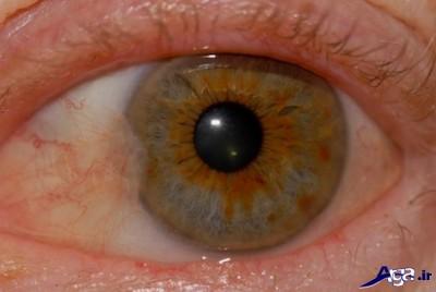 درمان خانگی ناخنک چشم