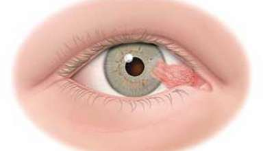 درمان ناخنک چشم و علل ایجاد آن