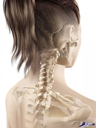 علل ایجاد دیسک گردن