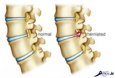 بررسی علائم دیسک گردن
