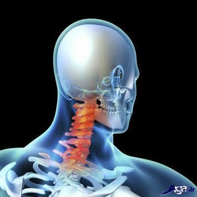 دیسک گردن و نشانه های آن