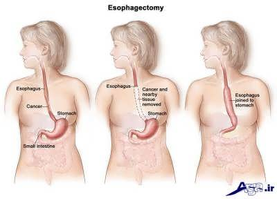 بروز سرطان مری در بدن
